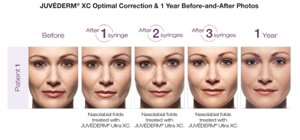 Filler Up with Juvederm