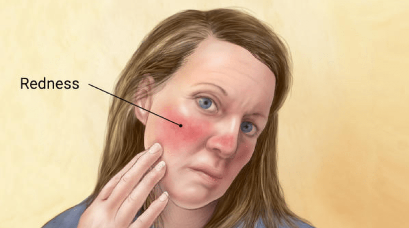 New Insights for Rosacea