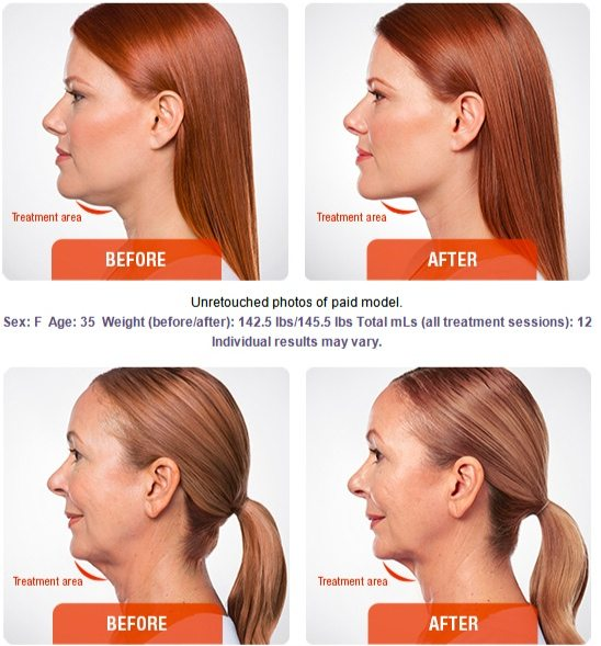 Non-Surgical Options to Improve Facial Definition - Essex